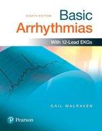 BASIC ARRHYTHMIAS (P)